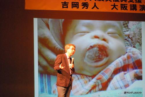 写真を使いながらの吉岡秀人先生の講演